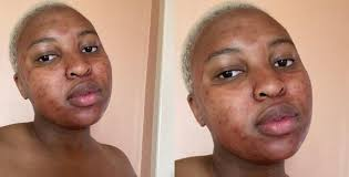 Young lady applied period blood on her face