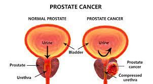 prostrate cancer signs