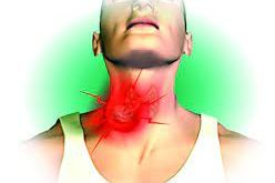 Know the Causes of throat cancer