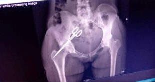 Scissors was removed from stomach